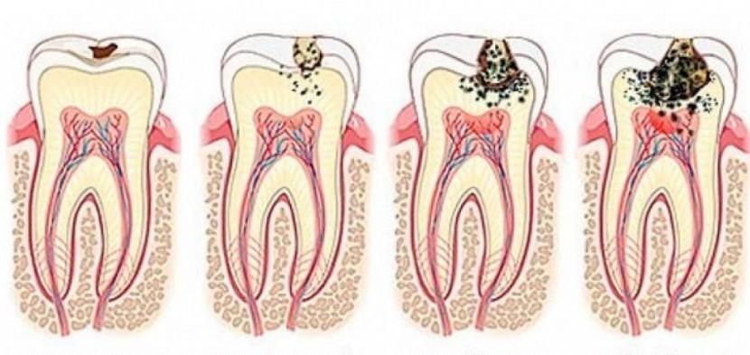 A fogszuvasodás folyamata