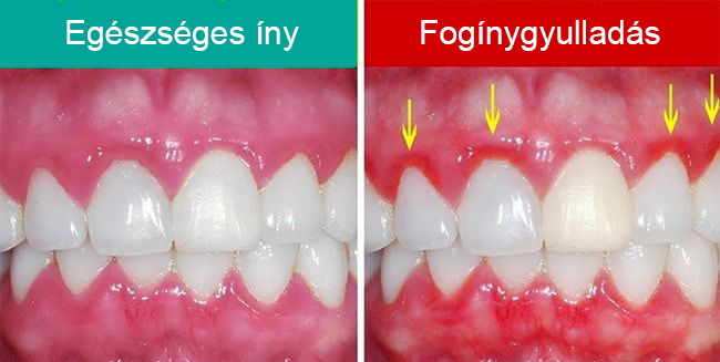 /fogkokepzodes-es-a-bakteriumok/